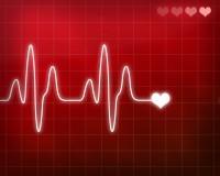 Heart Monitor dreamstime_m_4176220 (2)